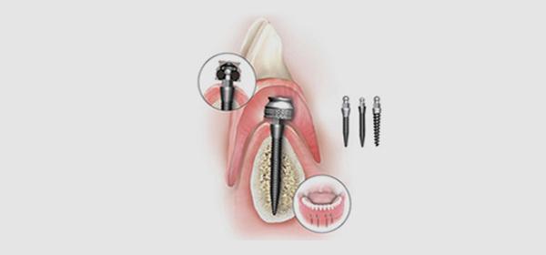 mini-implanty