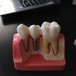 protezy zębowe ceny
